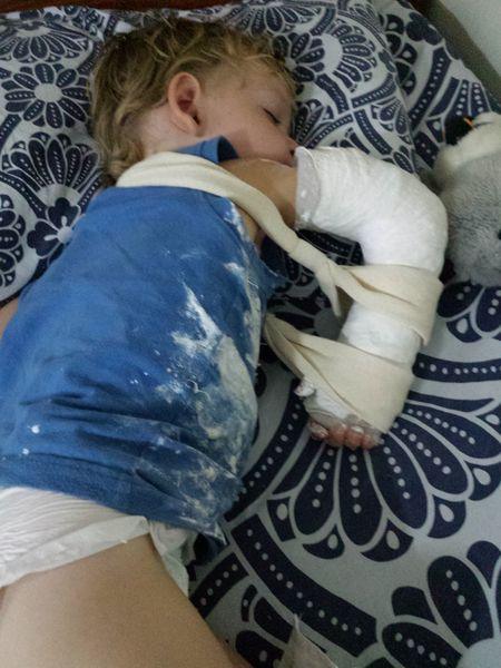 Fractured wrist in Israel - sleeping